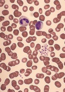 Pseudothrombocytopenia
