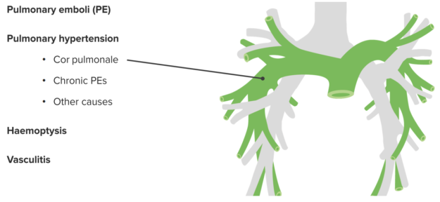 range-of-lung-diseases