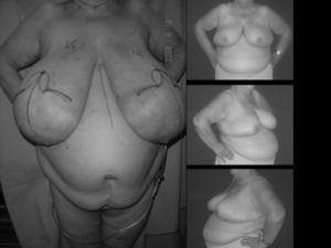 Patient with severe symptomatic macromastia