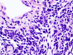 small cell carcinoma