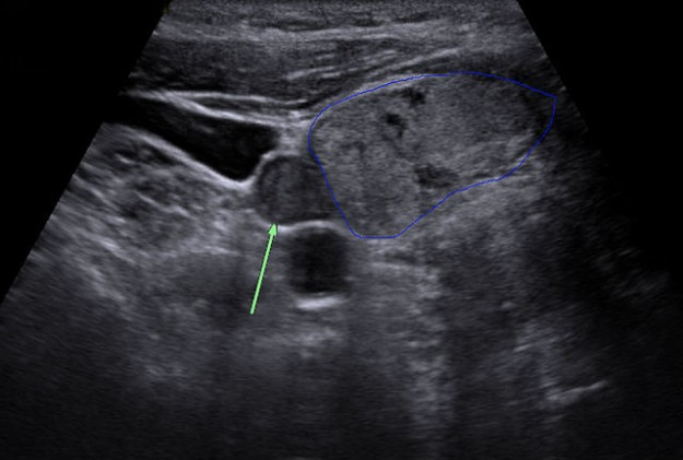 sonography of adenomas of the parathyroid gland