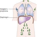 stage 1 Hodgkin's lymphoma