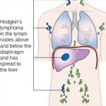 stage 4 Hodgkin's lymphoma