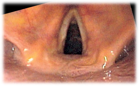 Endoscopic image of larynx seen at the time of intubation of the esophagus during gastroscopy