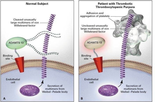 thrombotic-purpura