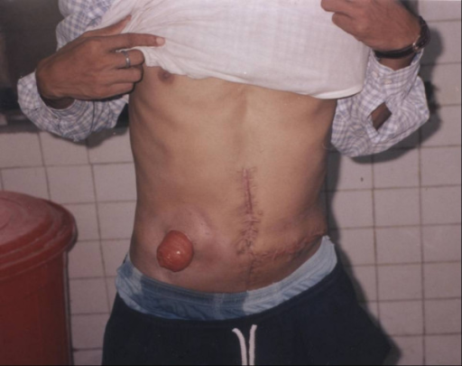 transverse colostomy on the right side