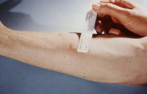 tuberculin skin test according to Mendel-Mantoux