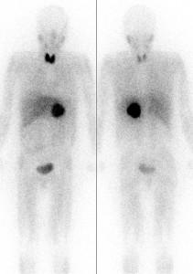 tumor of the left adrenal glands (pheochromocytoma)