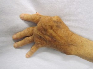ulnar deviation of the fingers