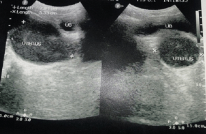 Bladder compression by the distended uterus