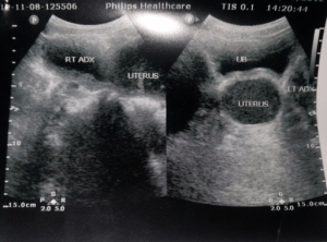Distended uterus