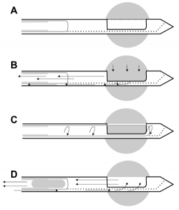 vacuum biopsy