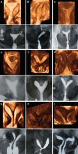 Comparison of three-dimensional ultrasound and HSG imaging in cases ofuterine malformation using AFS
