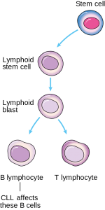 "Image: ""Diagram showing the cells CLL afects"" by Cancer Research UK. License: CC BY-SA 4.0"