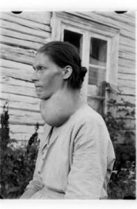 woman with struma
