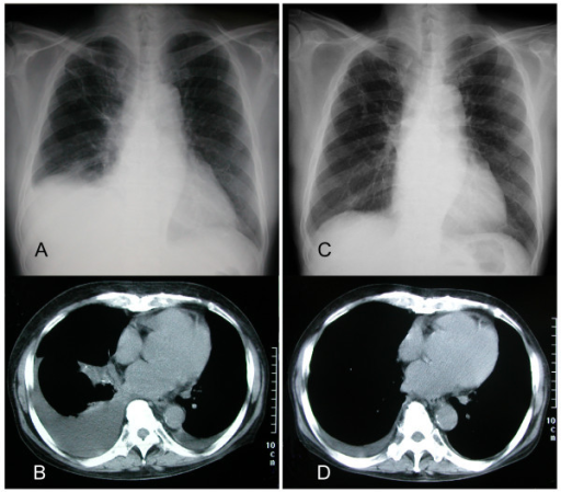 x-ray successful management of refractory pleural effusion