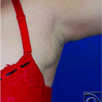 additional breast tissue